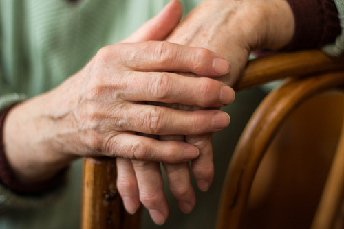 Arthritis drug for Alzheimer's therapy