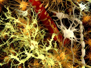Caption: Amyloid plaques are found in the brains of people with Down syndrome and Alzheimer's disease. Credit: Juan Gartner