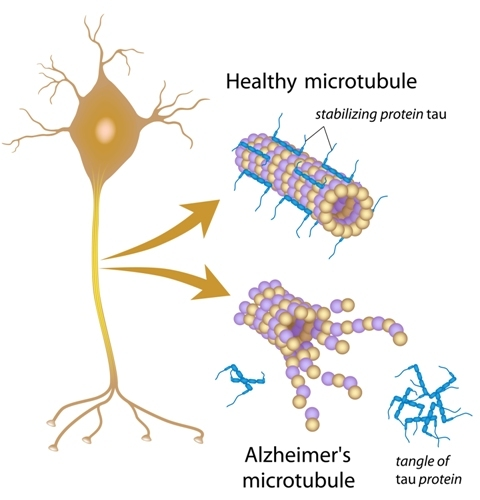 Study: THC Removes Toxic Protein that Causes Alzheimers