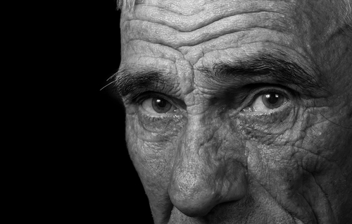 Connection Between Aggression and High Levels Of Testosterone In Alzheimer's Disease Male Patients