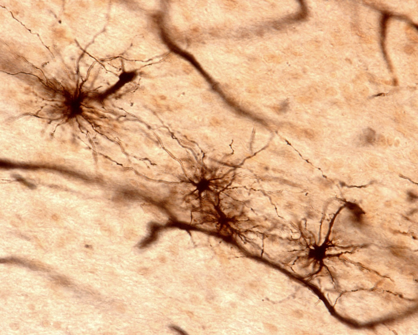 Astrocytes' Role in Neurological Disorders, Alzheimer's Disease