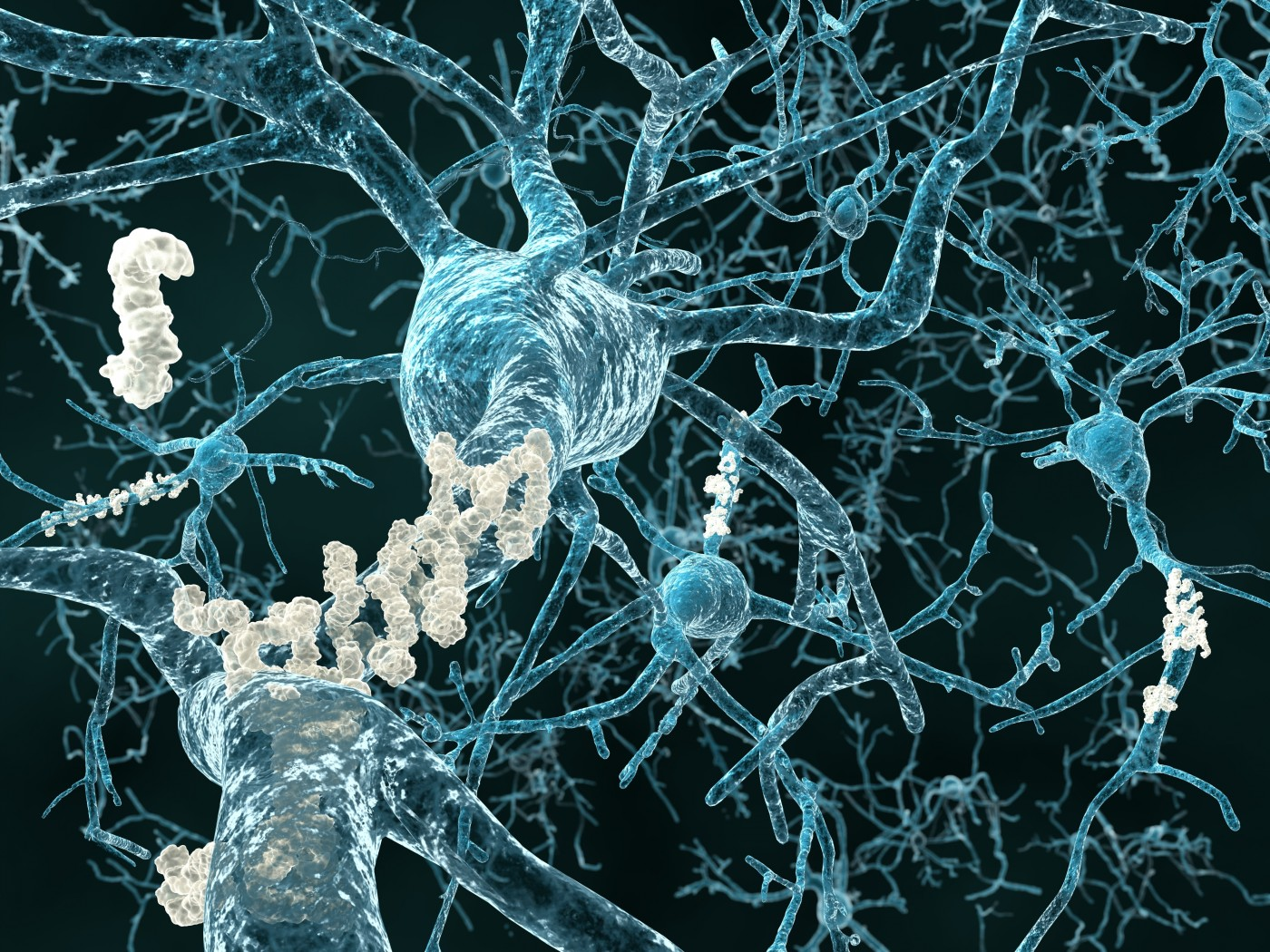 Novel Mechanism Involving Beta-Amyloid Protein Linked to Alzheimer's Disease
