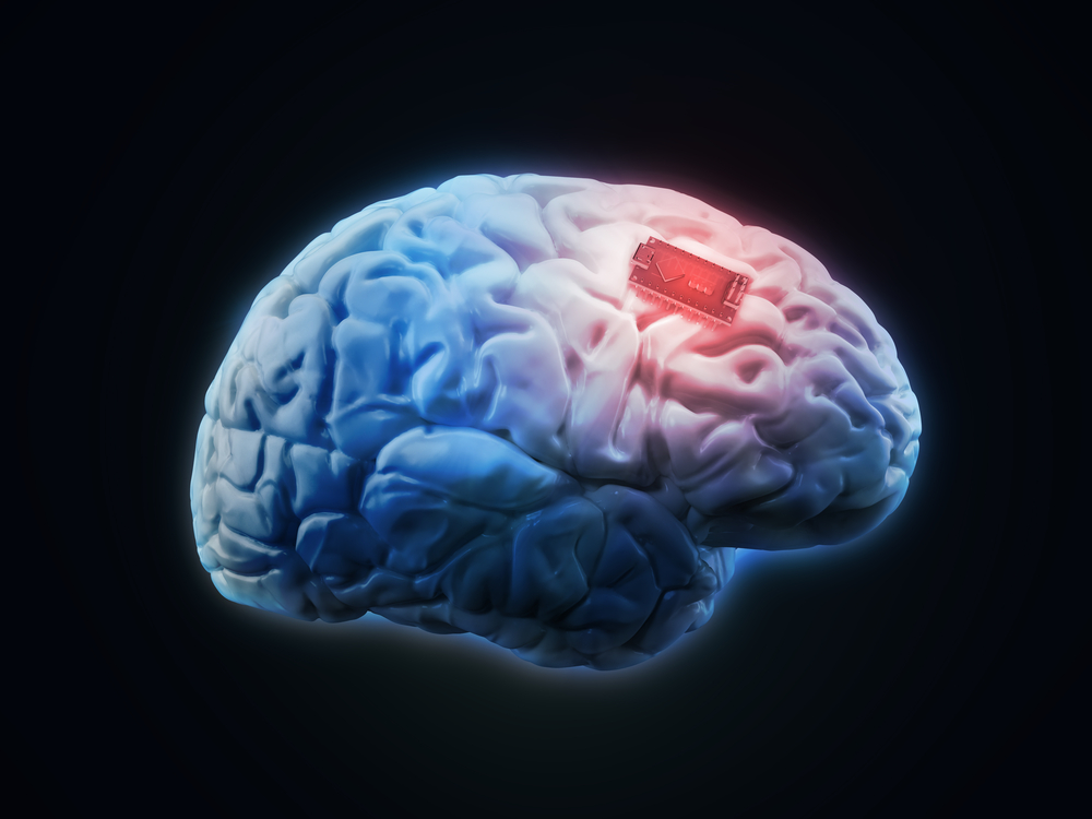 Brain Implant Could Help People With Memory Loss