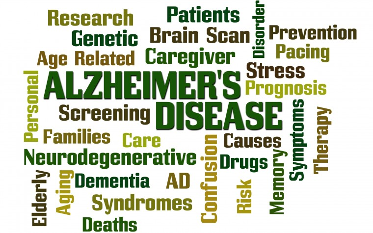 Phase 3 Trials of Lanabecestat in Alzheimer's Patients Stopped for Lack of Efficacy, Eli Lilly and AstraZeneca Announce