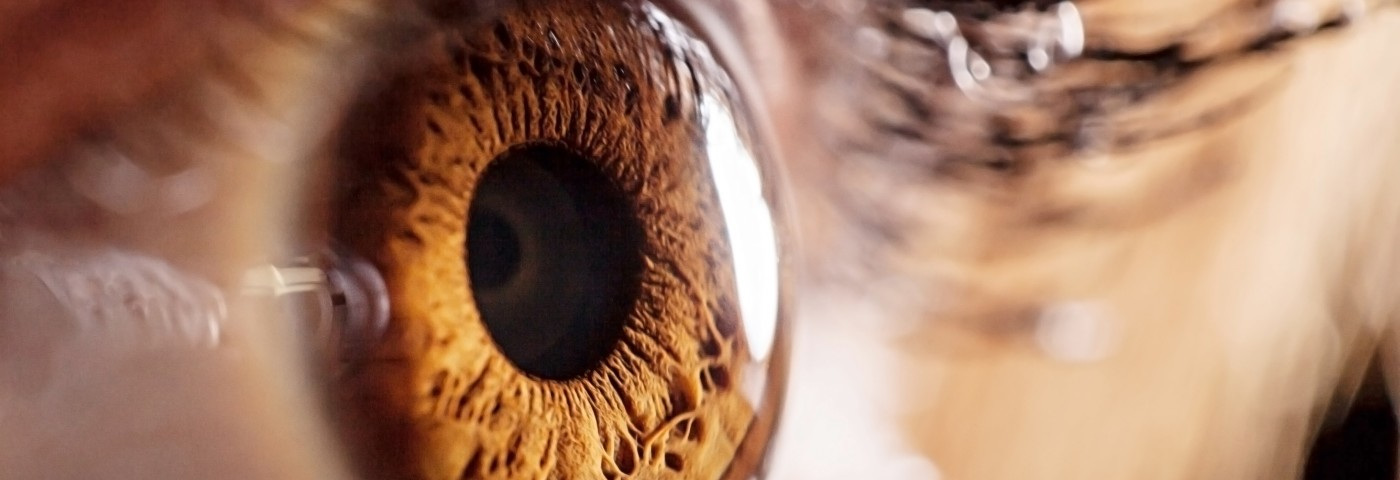 Alzheimer's Disturbed Sleep Traced to Eye Disorder