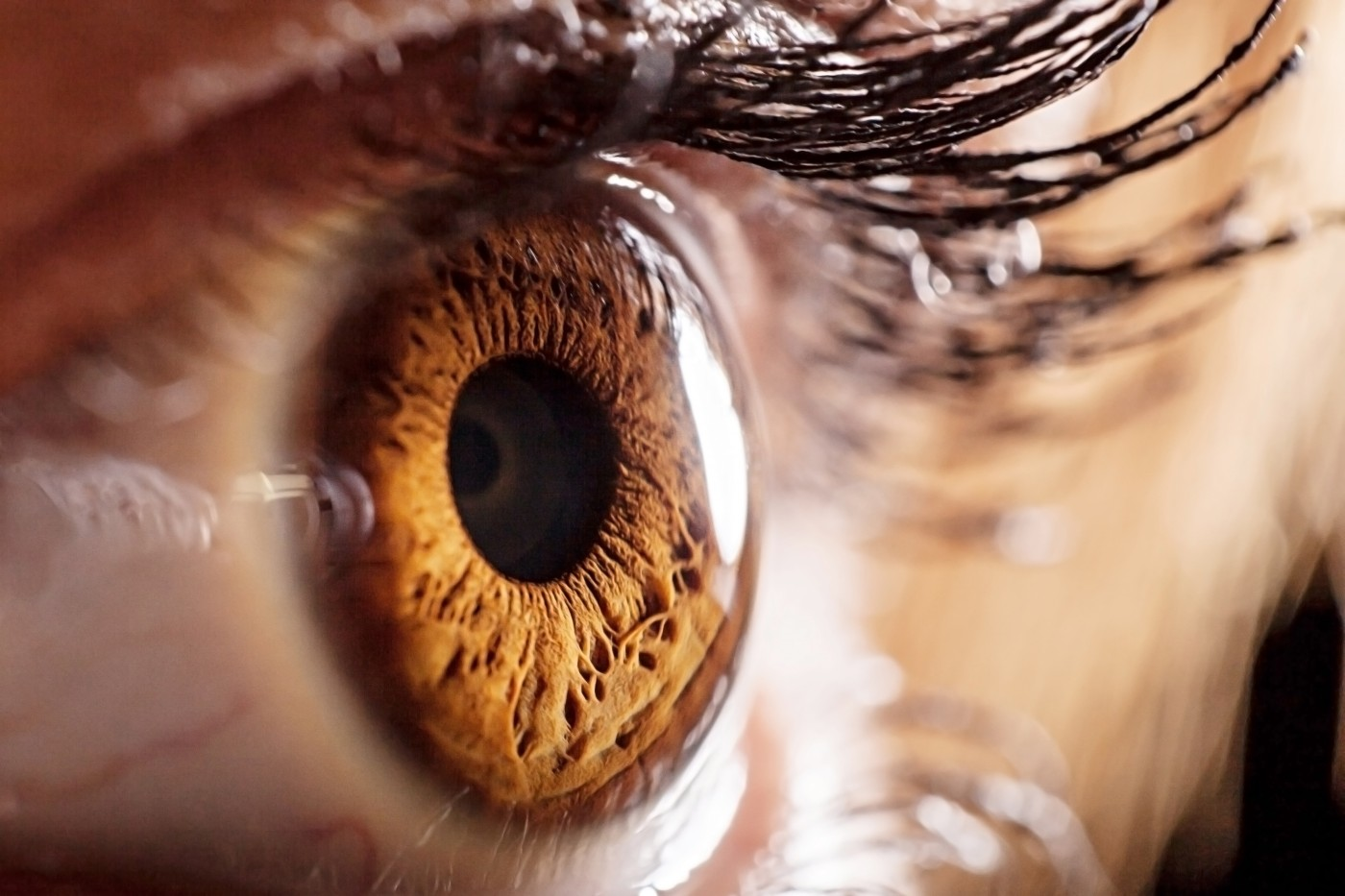 microRNA a potential therapy for Alzheimer's and macular degeneration
