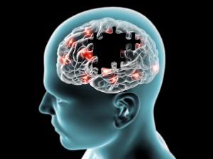 Potential Alzheimer's Treatment, Now in Phase 3 Testing, Gets Boost from FDA