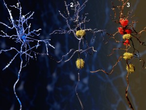 New Alzheimer's Therapy Shows Promise in Reducing Amyloid Plaques in Brain