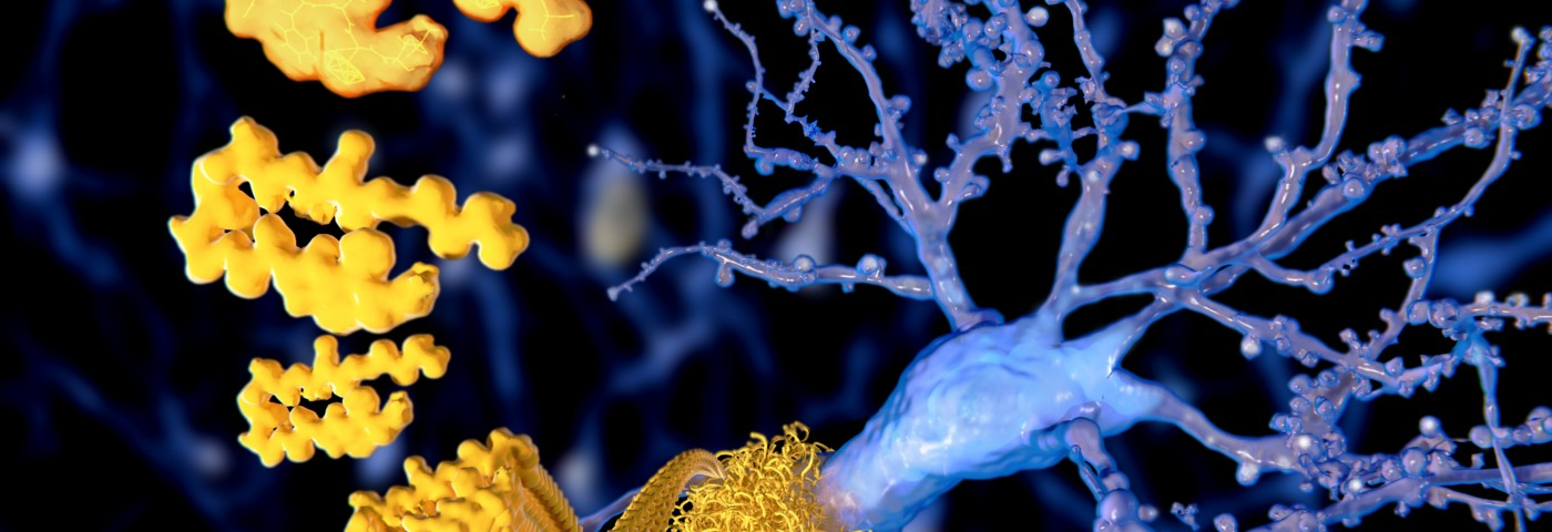 Alzheimer's-linked Buildup of Amyloid Beta More Common Than Thought, Study Finds