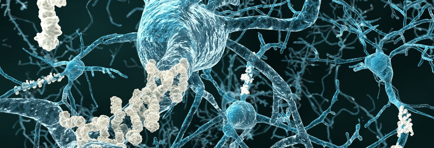 Mutated Gene Found to Play Key Role in Neurodegeneration
