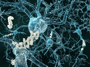 Rice University Computer Simulations Explore Molecular Start of Alzheimer's Disease