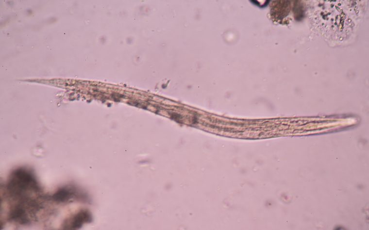 Roundworms in Alzheimer's drug screening