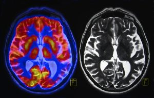 Biomarkers for Alzheimer's Are Focus of Large Study Getting Underway in UK
