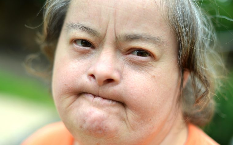 An older woman with Down syndrome.