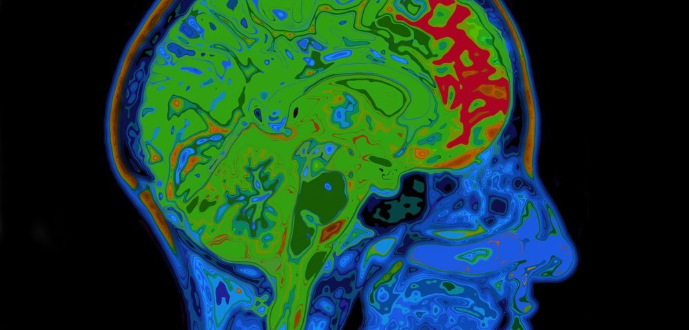 Moderate but Not Low-intensity Exercise Might Help Protect Brain from Alzheimer's