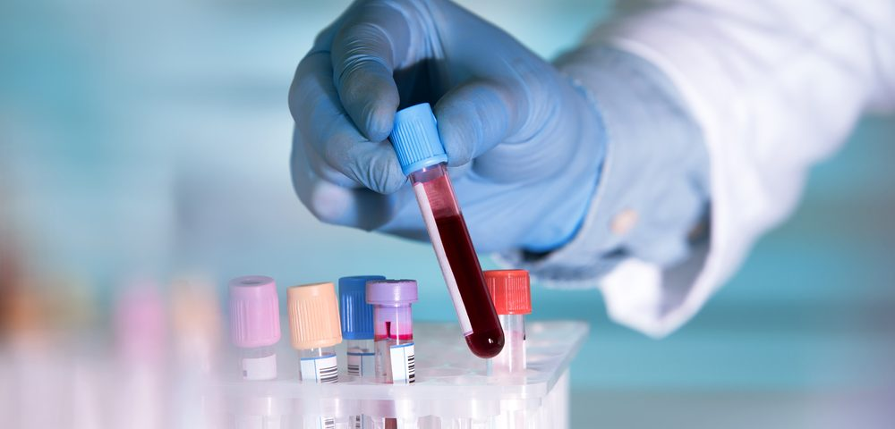 Arizona Researchers Develop Blood Test to Diagnose Early Alzheimer's Disease