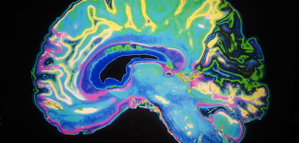 New Test Directly Measures Loss of Synapses in Alzheimer's Patients