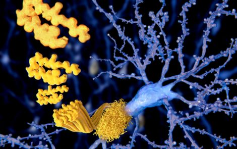 Investigational Therapy BAN2401 Slows Alzheimer's Progression Over 18 Months, Phase 2 Results Show
