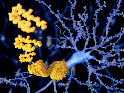 Gantenerumab Continues to Show Promise in Reduction of Amyloid Plaques