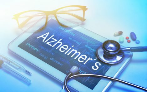 Age, Gender, and APOE4 Variant May Help Identify Those at High Risk for Dementia, Study Suggests