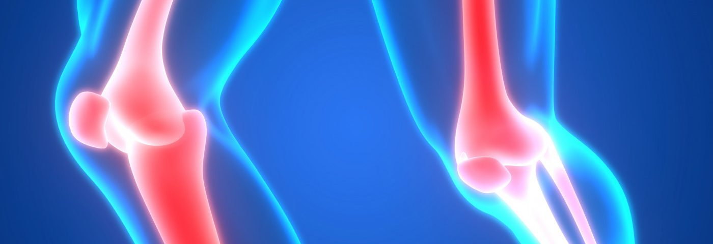 Long-term Treatment with Thiazide Diuretics May Lower Risk of Bone, Hip Fractures, Study Suggests