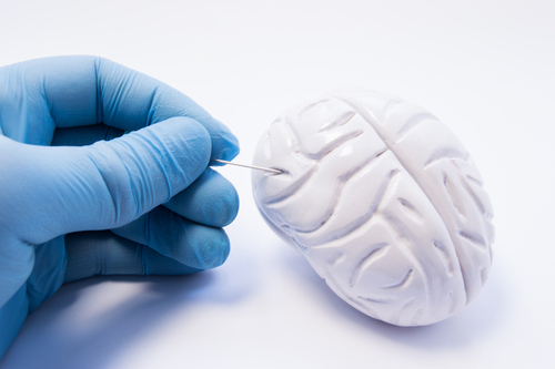 AxoSim Licenses Mini-Brain Technology to Pursue Therapies for Alzheimer's, Other Disorders