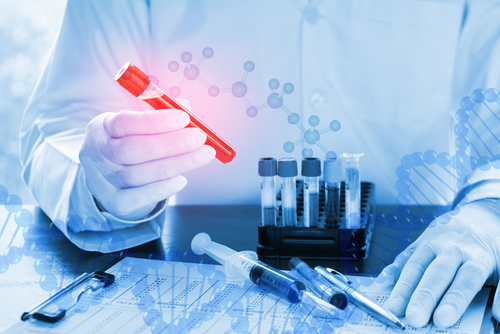 Enrollment Complete for Clinical Trial of LymPro, an Alzheimer's Investigational Blood Diagnostic Test