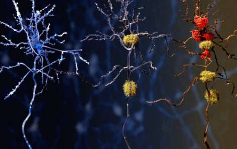 AlzeCure Announces Positive Data From Its First Clinical Study of ACD856