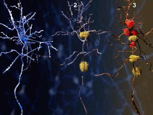 Targeting Single Enzyme May Produce Multiple Benefits for Alzheimer's, Mouse Study Suggests