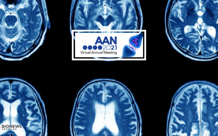 #AANAM – Lecanemab Safely, Quickly Lowers Amyloid Clumps in Trial