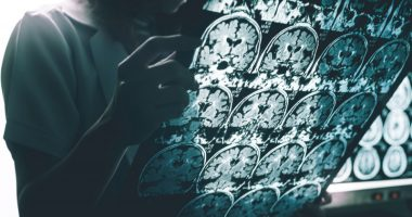 Aduhelm for early Alzheimer's | Alzheimer's News Today | view of brain scans