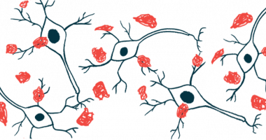 dosing begins in ACU193 trial/Alzheimer's News Today/amyloid plaques illustration